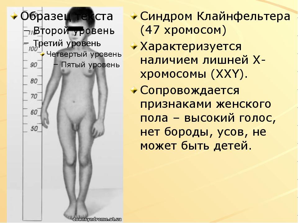 Синдром Клайнфельтера (47 хромосом) Характеризуется наличием лишней Х-хромосо...