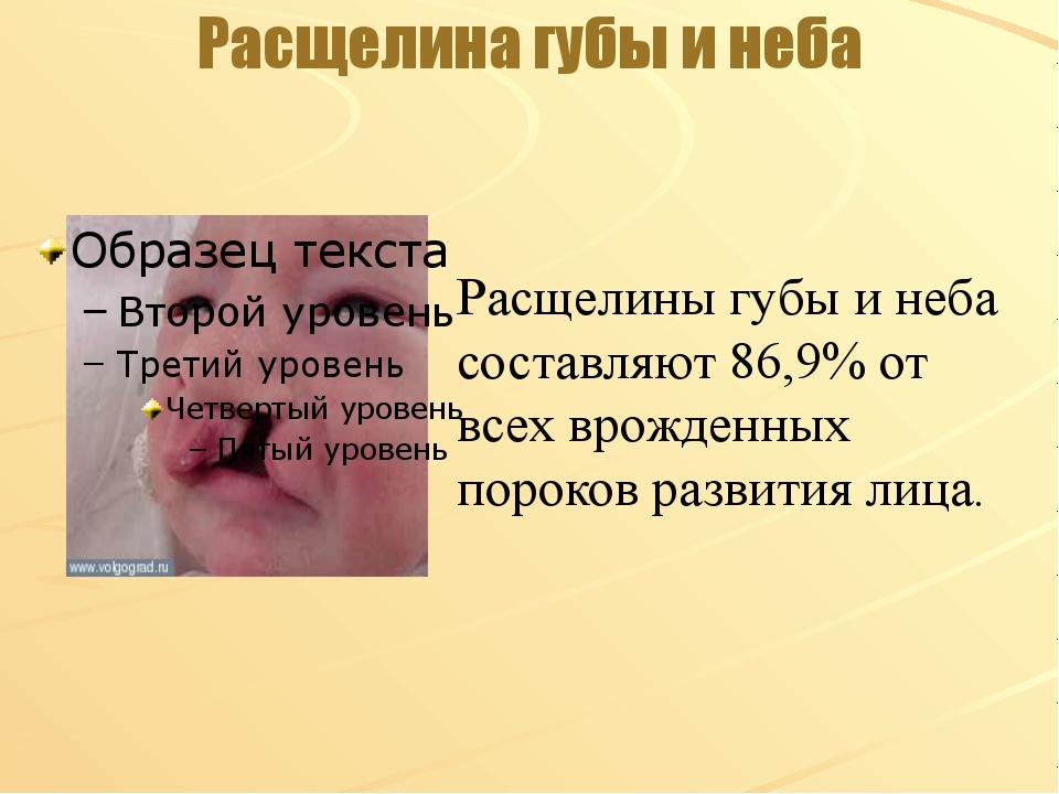 Расщелина губы и неба Расщелины губы и неба составляют 86,9% от всех врожденн...
