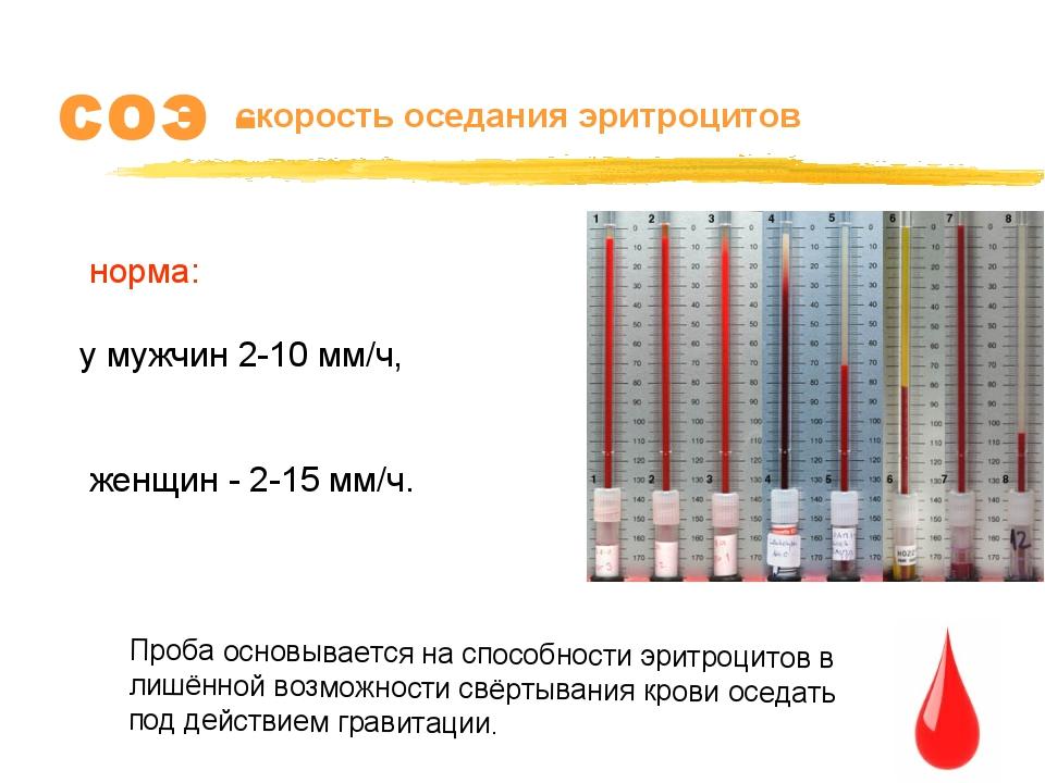 СОЭ - скорость оседания эритроцитов норма: у мужчин 2-10 мм/ч, женщин - 2-15...