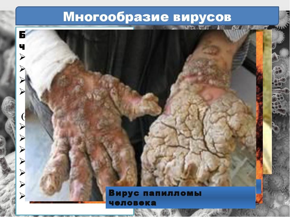 корь Многообразие вирусов Болезни человека: свинка грипп оспа некоторые онкол...