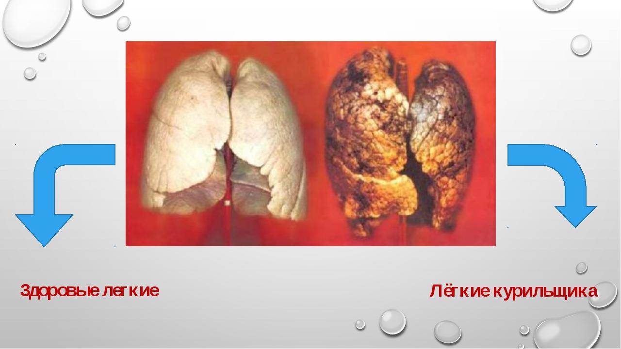 Здоровые легкие Лёгкие курильщика