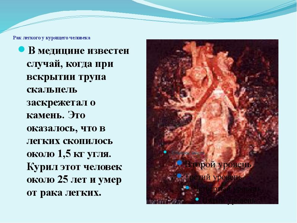 Рак легкого у курящего человека В медицине известен случай, когда при вскрыт...
