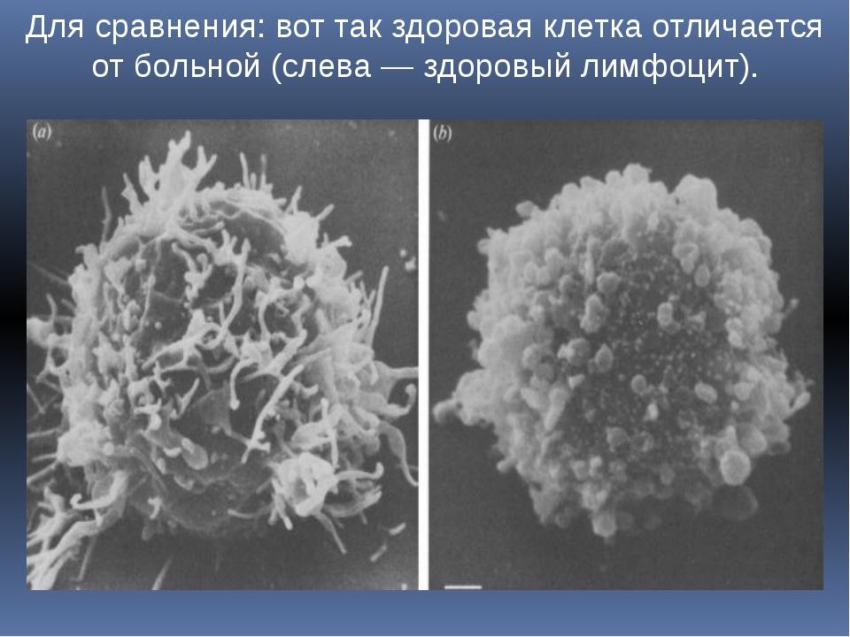 Для сравнения: вот так здоровая клетка отличается от больной (слева — здоровы...