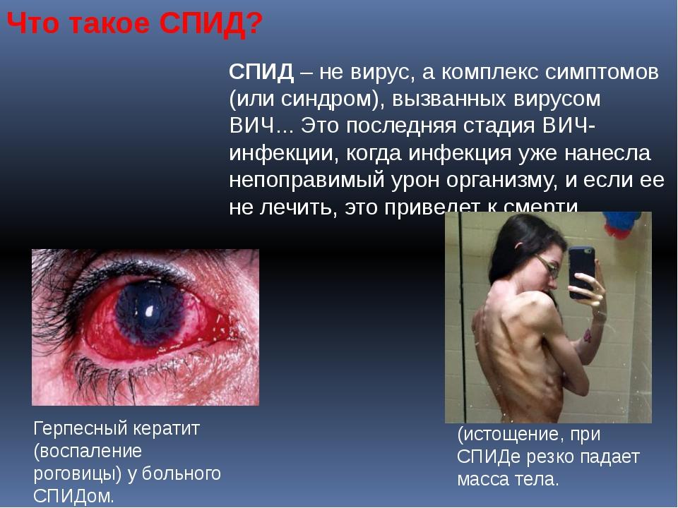 Что такое СПИД? СПИД – не вирус, а комплекс симптомов (или синдром), вызванны...